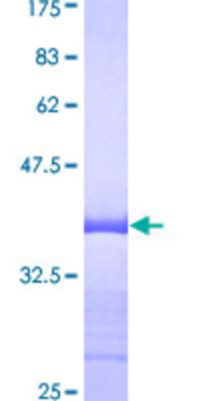 AbnovaHuman DCTN2 Partial ORF (AAH00718, 302 a.a. - 401 a.a.) Recombinant