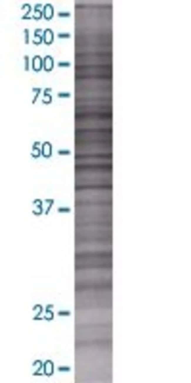AbnovaANP32B 293T Cell Transient Overexpression Lysate (Denatured) 100μL:Protein