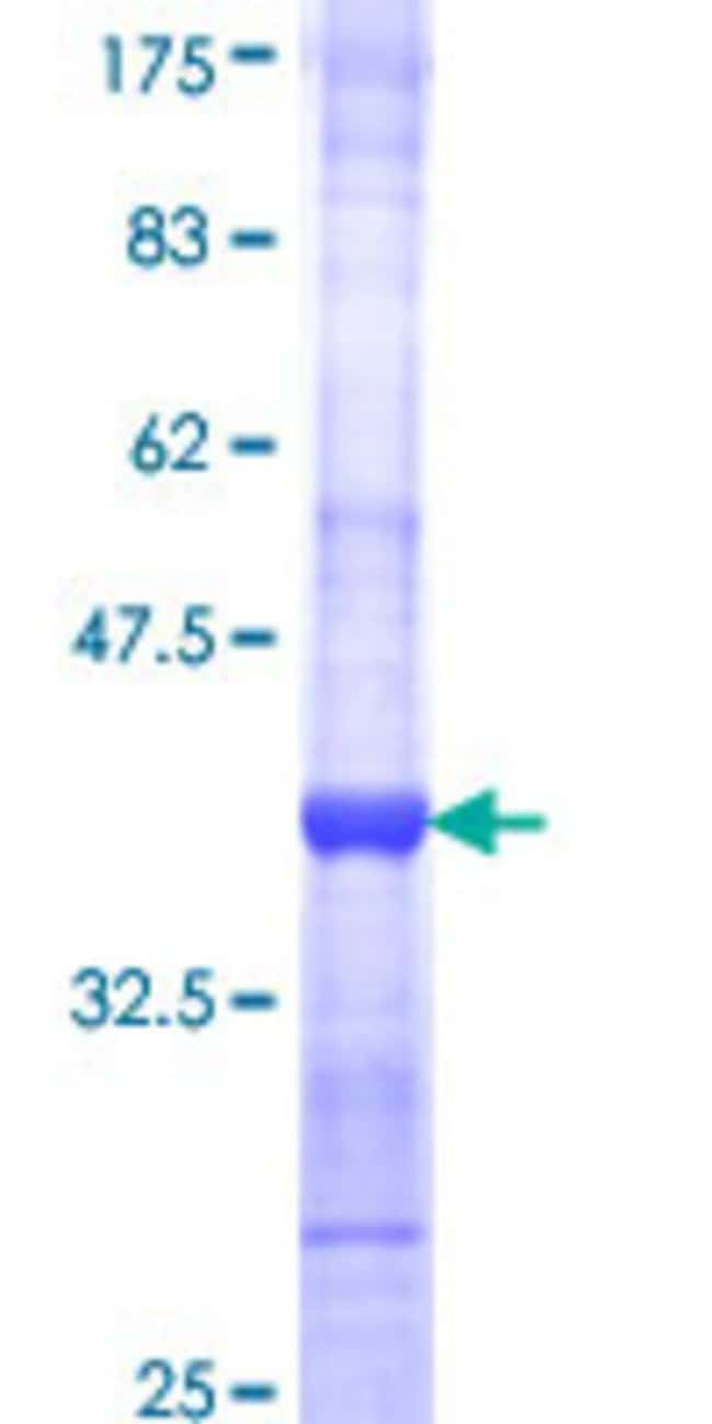 Abnova™Human AGR2 Partial ORF (NP_006399, 21 a.a. - 110 a.a.) Recombinant Protein with GST-tag at N-terminal 10μg Abnova™Human AGR2 Partial ORF (NP_006399, 21 a.a. - 110 a.a.) Recombinant Protein with GST-tag at N-terminal