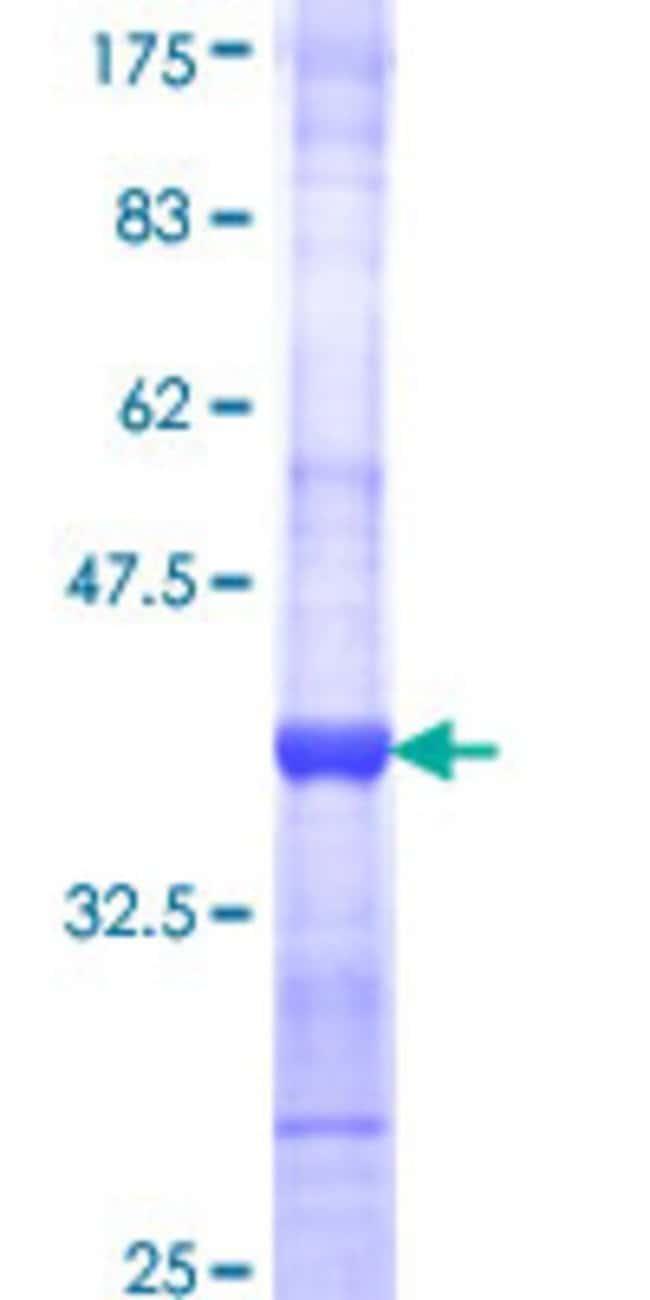AbnovaHuman AGR2 Partial ORF (NP_006399, 21 a.a. - 110 a.a.) Recombinant