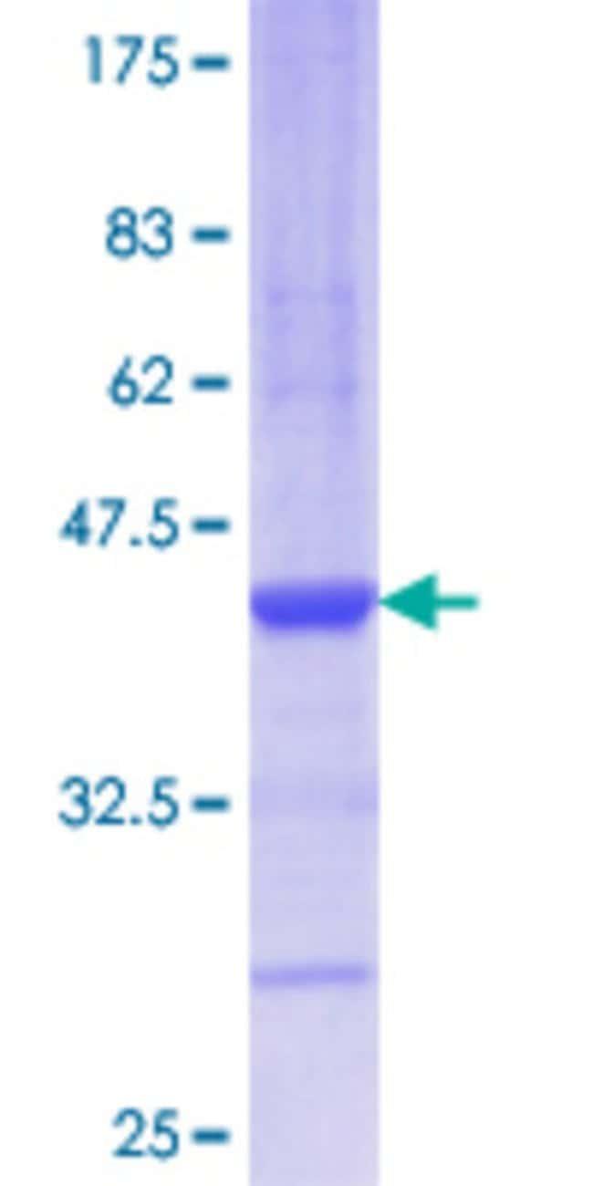AbnovaHuman AGR2 Partial ORF (AAH15503.1, 61 a.a. - 160 a.a.) Recombinant