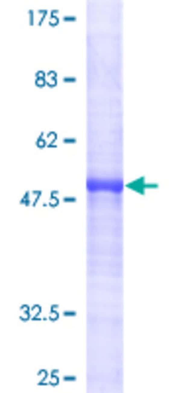 AbnovaHuman HTATIP2 Full-length ORF (AAH15358, 1 a.a. - 242 a.a.) Recombinant