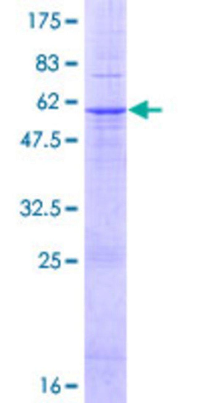 AbnovaHuman AGPAT2 Full-length ORF (NP_006403.2, 1 a.a. - 278 a.a.) Recombinant