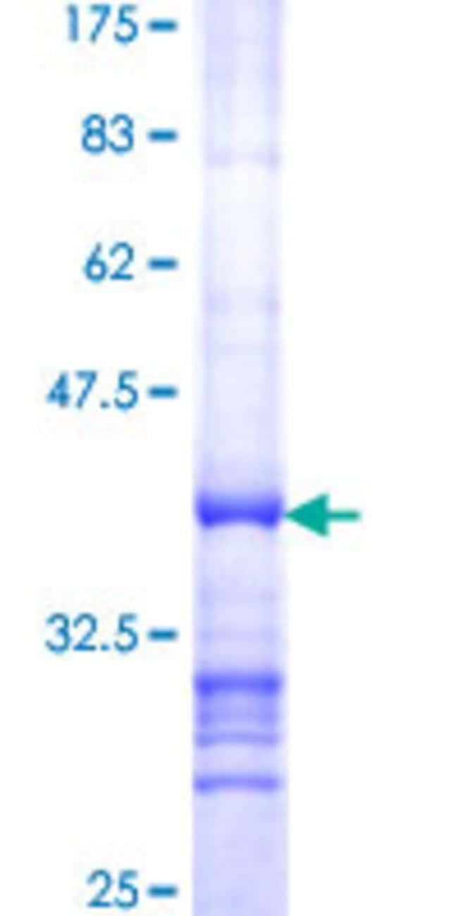 AbnovaHuman RPP30 Partial ORF (NP_006404, 169 a.a. - 268 a.a.) Recombinant