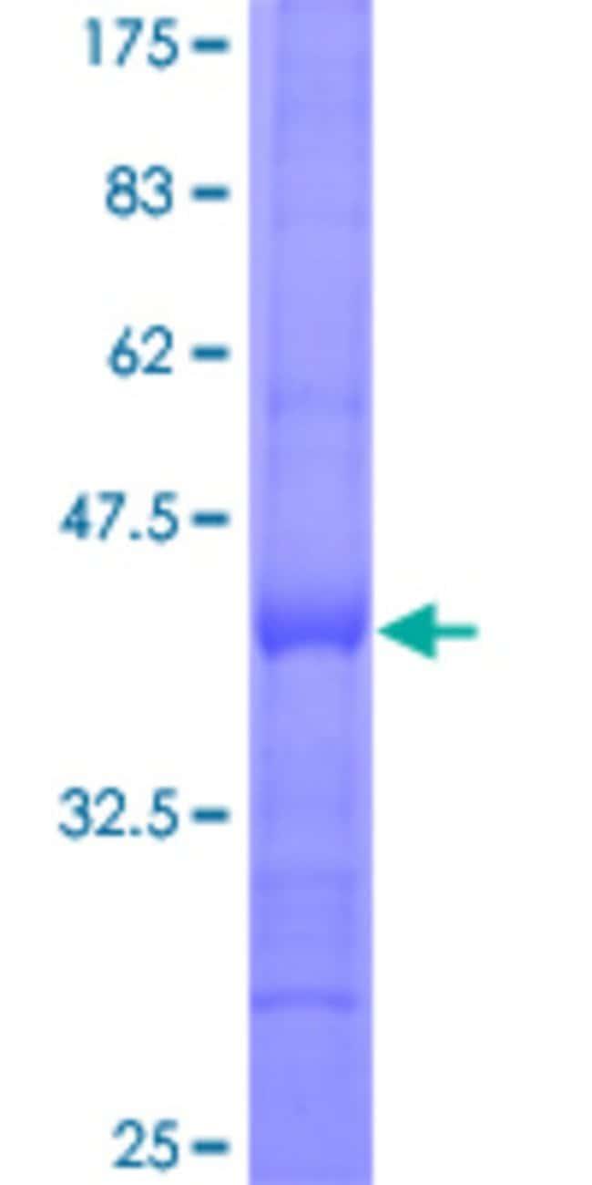 AbnovaHuman RPP38 Partial ORF (NP_892117, 141 a.a. - 250 a.a.) Recombinant