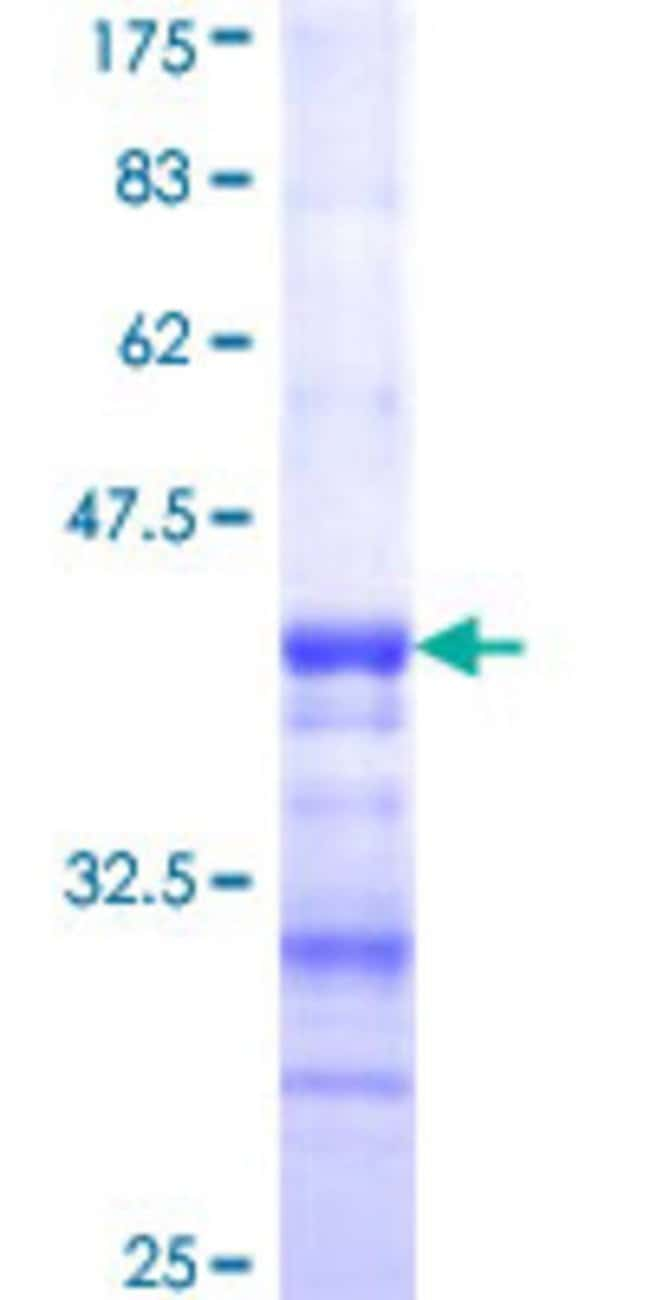 Abnova™ Human DPYSL4 Partial ORF (NP_006417, 461 a.a. - 559 a.a.) Recombinant Protein with GST-tag at N-terminal 25μg Abnova™ Human DPYSL4 Partial ORF (NP_006417, 461 a.a. - 559 a.a.) Recombinant Protein with GST-tag at N-terminal