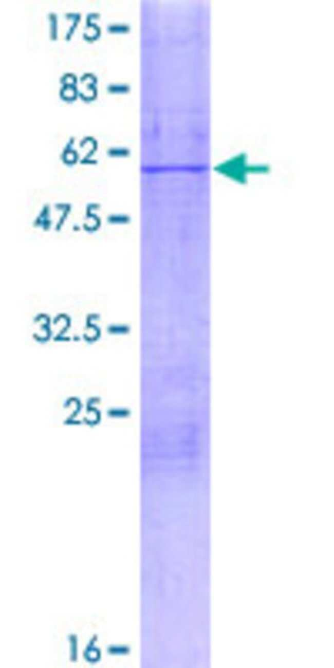 AbnovaHuman MRPL28 Full-length ORF (NP_006419.2, 1 a.a. - 256 a.a.) Recombinant