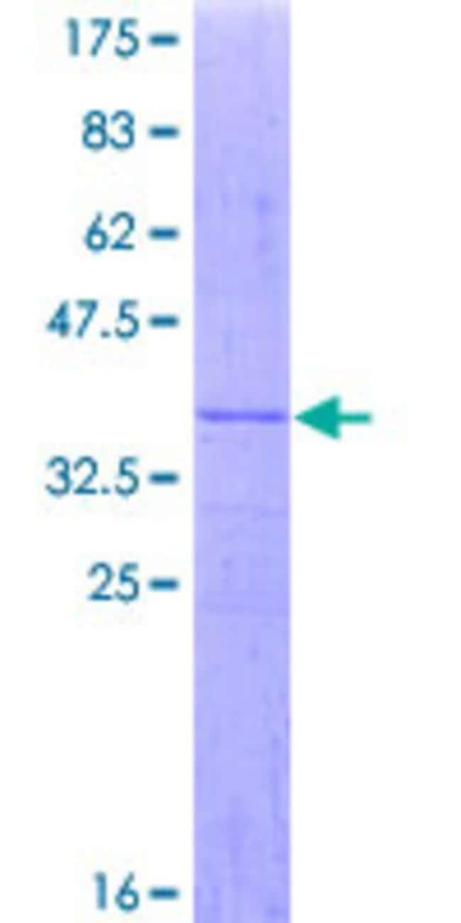 AbnovaHuman MRPL28 Partial ORF (NP_006419, 1 a.a. - 99 a.a.) Recombinant