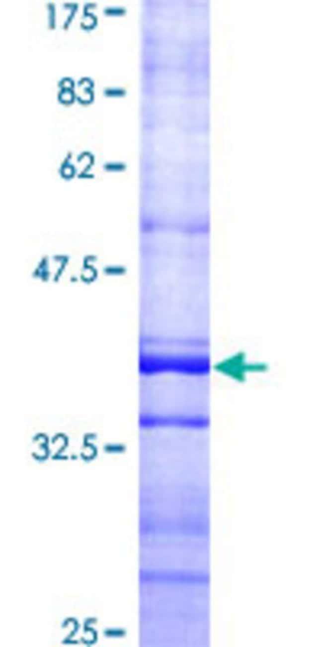 AbnovaHuman CCT7 Partial ORF (AAH19296, 425 a.a. - 528 a.a.) Recombinant