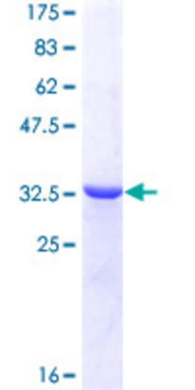 AbnovaHuman CCT4 Partial ORF (NP_006421, 306 a.a. - 408 a.a.) Recombinant