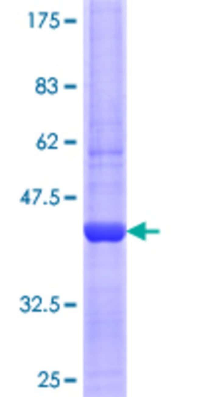 AbnovaHuman NPC2 Partial ORF (NP_006423.1, 52 a.a. - 151 a.a.) Recombinant