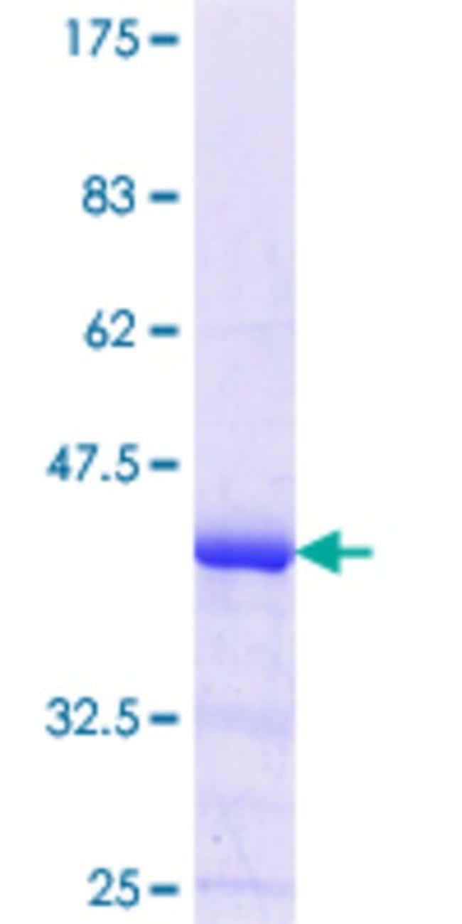 AbnovaHuman POMT1 Partial ORF (NP_009102.2, 483 a.a. - 580 a.a.) Recombinant