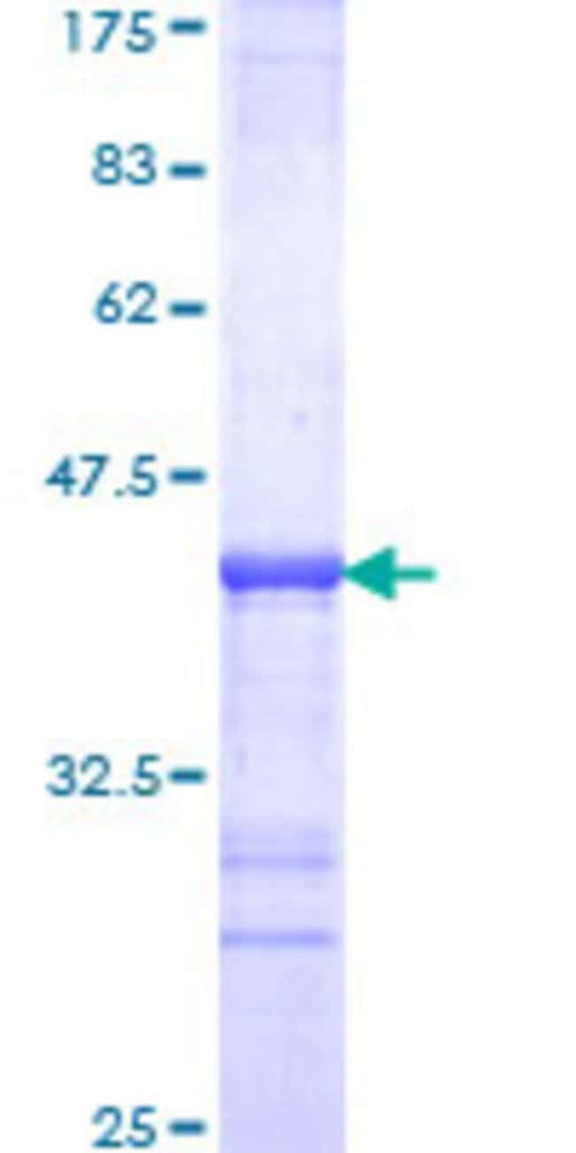 Abnova™Human DRAP1 Partial ORF (NP_006433, 2 a.a. - 105 a.a.) Recombinant Protein with GST-tag at N-terminal 10μg Abnova™Human DRAP1 Partial ORF (NP_006433, 2 a.a. - 105 a.a.) Recombinant Protein with GST-tag at N-terminal