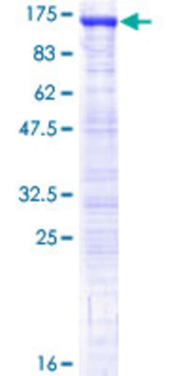 AbnovaHuman USP16 Full-length ORF (AAH30777.1, 1 a.a. - 822 a.a.) Recombinant