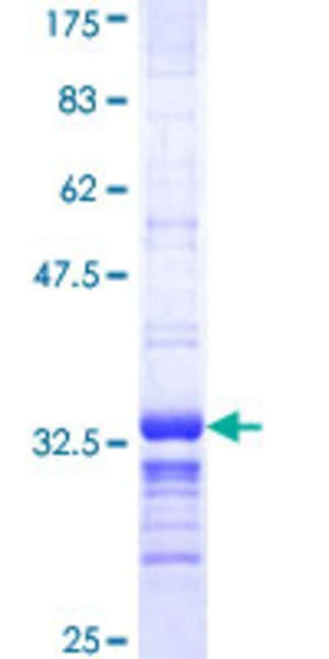 AbnovaHuman CDC42EP3 Partial ORF (NP_006440, 42 a.a. - 108 a.a.) Recombinant
