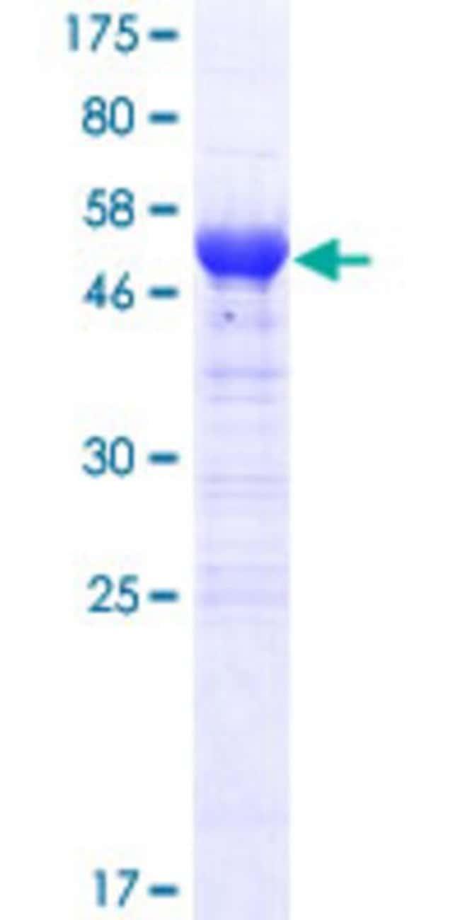 Abnova™Human ARID3B Full-length ORF (AAH60824.1, 1 a.a. - 253 a.a.) Recombinant Protein with GST-tag at N-terminal 10μg Abnova™Human ARID3B Full-length ORF (AAH60824.1, 1 a.a. - 253 a.a.) Recombinant Protein with GST-tag at N-terminal