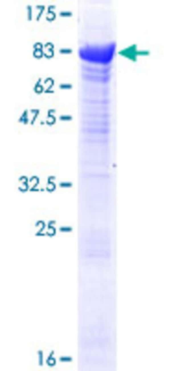 Abnova™Human TRIM16 Full-length ORF (NP_006461.3, 1 a.a. - 564 a.a.) Recombinant Protein with GST-tag at N-terminal 25μg Abnova™Human TRIM16 Full-length ORF (NP_006461.3, 1 a.a. - 564 a.a.) Recombinant Protein with GST-tag at N-terminal