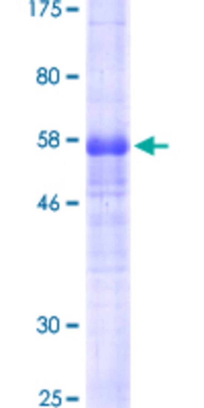 AbnovaHuman PDPN Full-length ORF (AAH22812.2, 1 a.a. - 238 a.a.) Recombinant