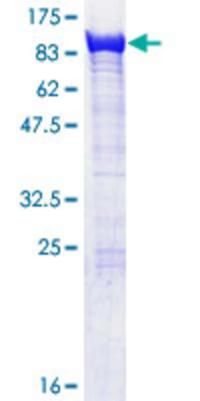 Abnova™Human EXOC5 Full-length ORF (NP_006535.1, 1 a.a. - 708 a.a.) Recombinant Protein with GST-tag at N-terminal 10μg Abnova™Human EXOC5 Full-length ORF (NP_006535.1, 1 a.a. - 708 a.a.) Recombinant Protein with GST-tag at N-terminal