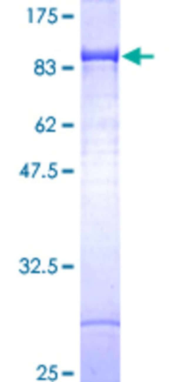 Abnova Human IMP-2 Full-length ORF (AAH21290, 1 a.a. - 598 a.a.) Recombinant