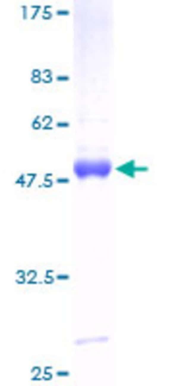 AbnovaHuman PMVK Full-length ORF (AAH07694, 1 a.a. - 192 a.a.) Recombinant