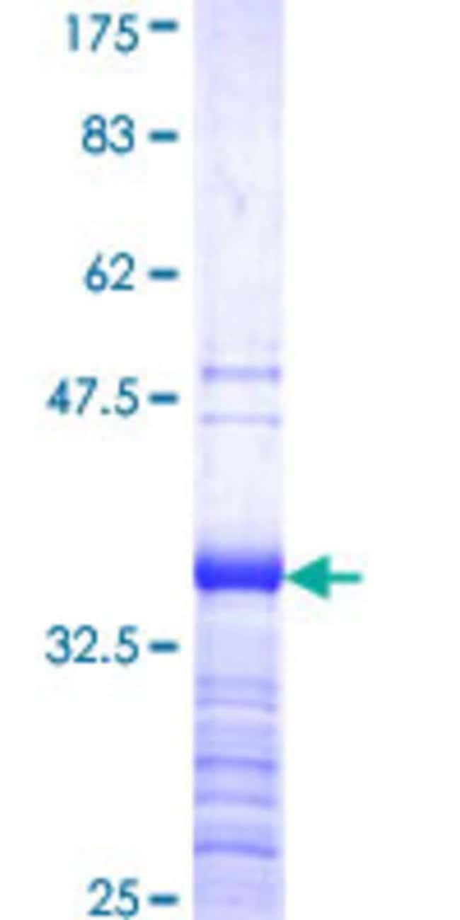 Abnova™Human DMRT2 Partial ORF (NP_006548, 99 a.a. - 190 a.a.) Recombinant Protein with GST-tag at N-terminal 25μg Abnova™Human DMRT2 Partial ORF (NP_006548, 99 a.a. - 190 a.a.) Recombinant Protein with GST-tag at N-terminal