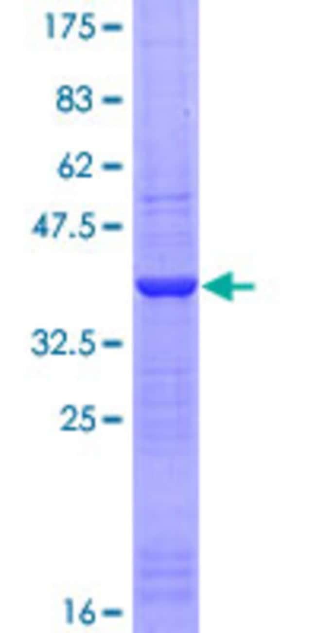 AbnovaHuman KHDRBS1 Partial ORF (AAH00717, 176 a.a. - 275 a.a.) Recombinant