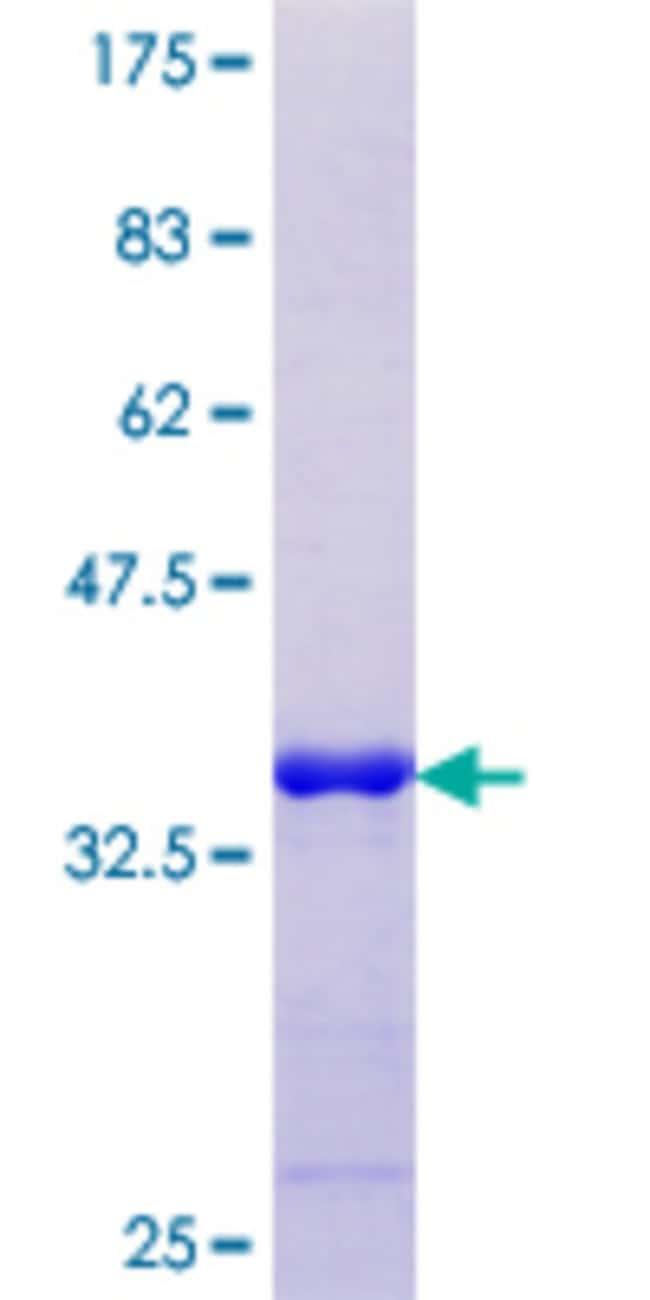AbnovaHuman LBX1 Partial ORF (NP_006553.2, 133 a.a. - 219 a.a.) Recombinant