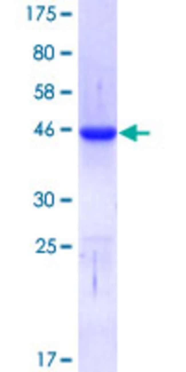 AbnovaHuman CTCF Partial ORF (AAH14267, 1 a.a. - 100 a.a.) Recombinant