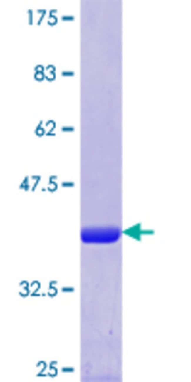 AbnovaHuman FARS2 Partial ORF (NP_006558.1, 351 a.a. - 451 a.a.) Recombinant
