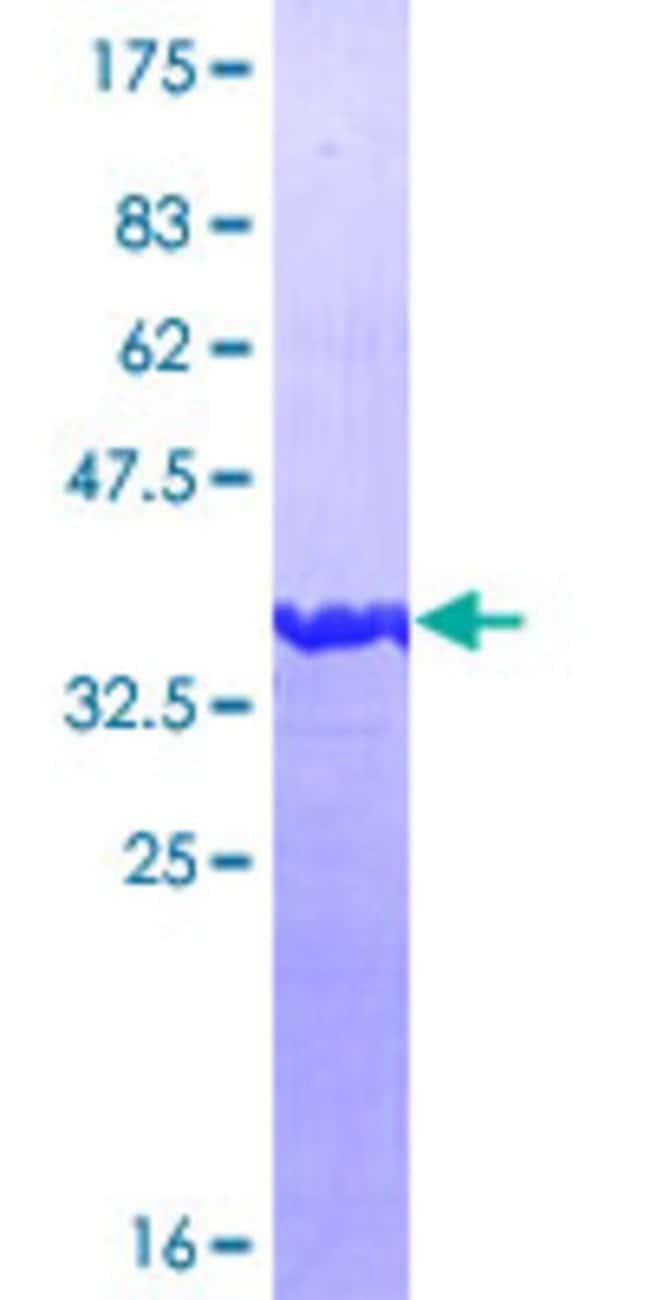 AbnovaHuman CGREF1 Partial ORF (AAH34764, 136 a.a. - 235 a.a.) Recombinant