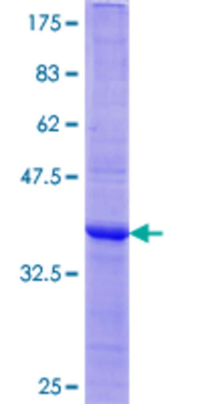 AbnovaHuman TNFSF13B Partial ORF (AAH20674.1, 118 a.a. - 222 a.a.) Recombinant