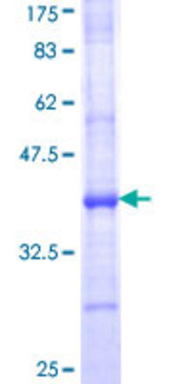 AbnovaHuman B3GNT2 Partial ORF (NP_006568, 111 a.a. - 210 a.a.) Recombinant