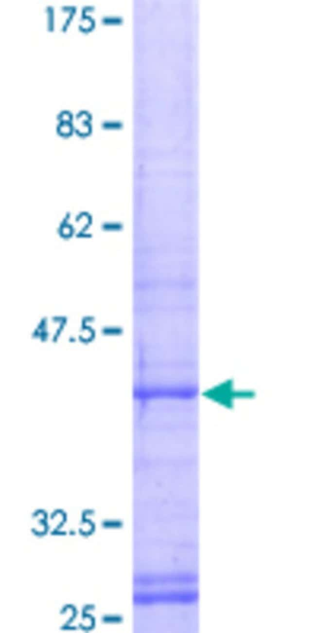 Abnova™ Human GNB5 Full-length ORF (AAH11671, 1 a.a. - 126 a.a.) Recombinant Protein with GST-tag at N-terminal 10μg Abnova™ Human GNB5 Full-length ORF (AAH11671, 1 a.a. - 126 a.a.) Recombinant Protein with GST-tag at N-terminal