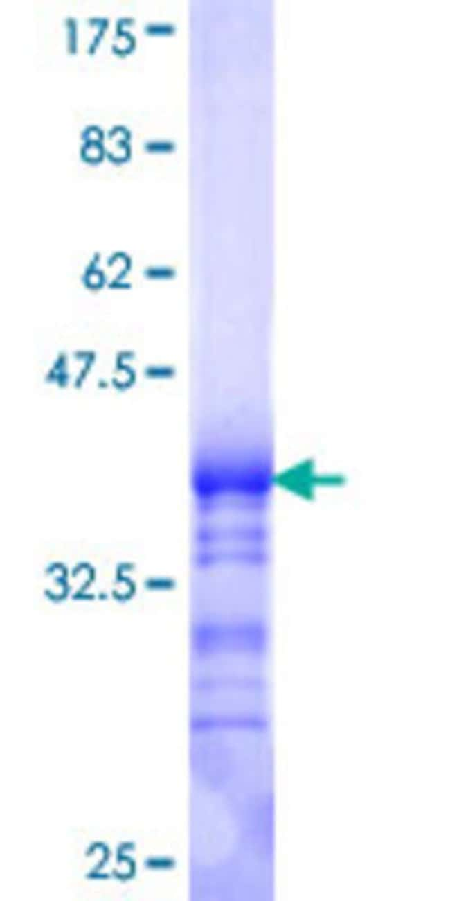 Abnova™Human GNB5 Partial ORF (NP_057278, 1 a.a. - 90 a.a.) Recombinant Protein with GST-tag at N-terminal 25μg Abnova™Human GNB5 Partial ORF (NP_057278, 1 a.a. - 90 a.a.) Recombinant Protein with GST-tag at N-terminal