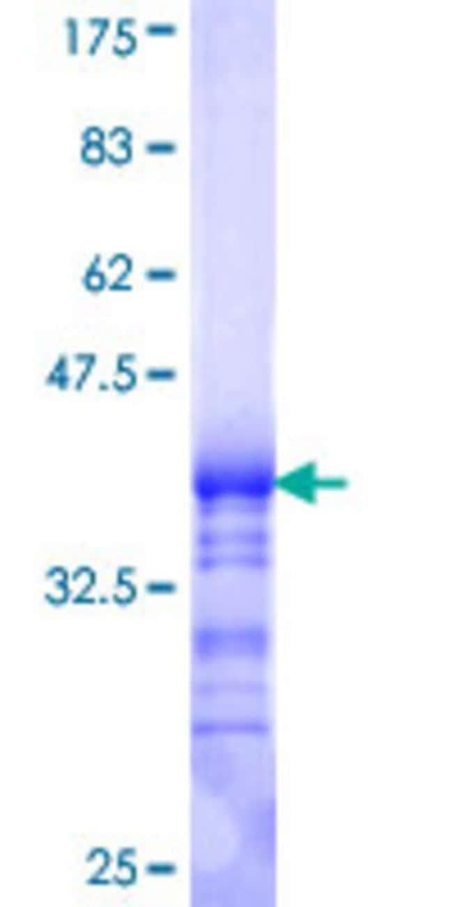 AbnovaHuman GNB5 Partial ORF (NP_057278, 1 a.a. - 90 a.a.) Recombinant