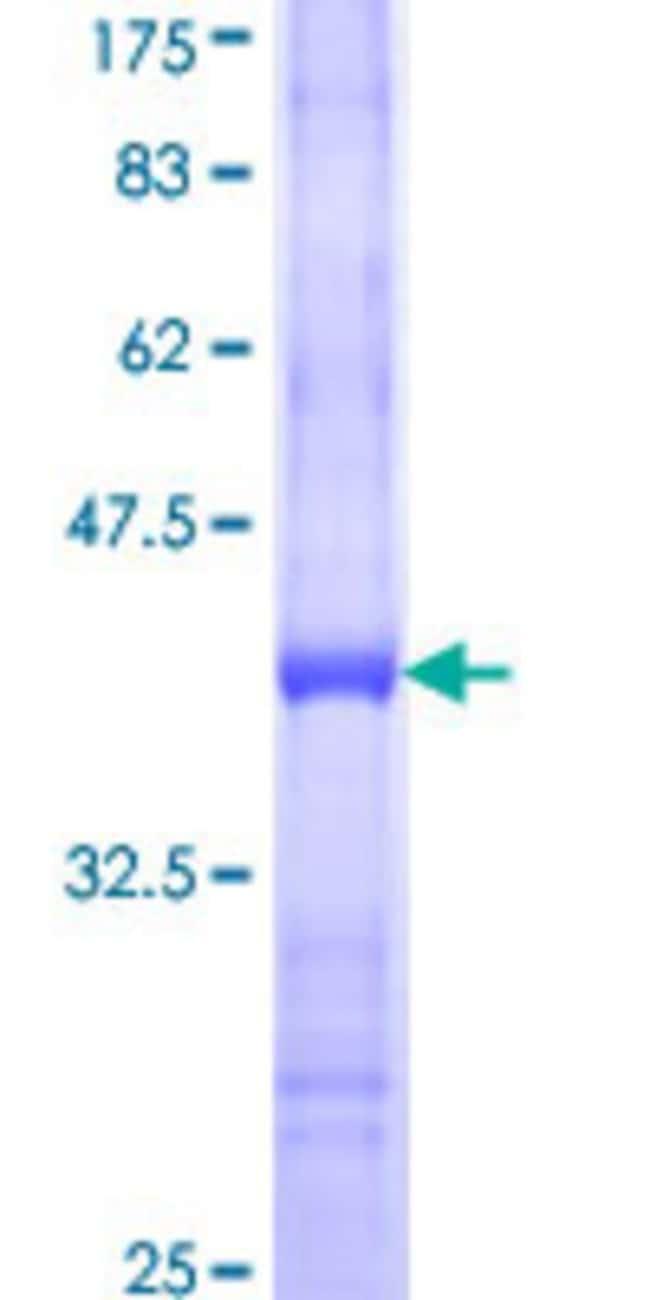AbnovaHuman FUT9 Partial ORF (NP_006572, 95 a.a. - 194 a.a.) Recombinant