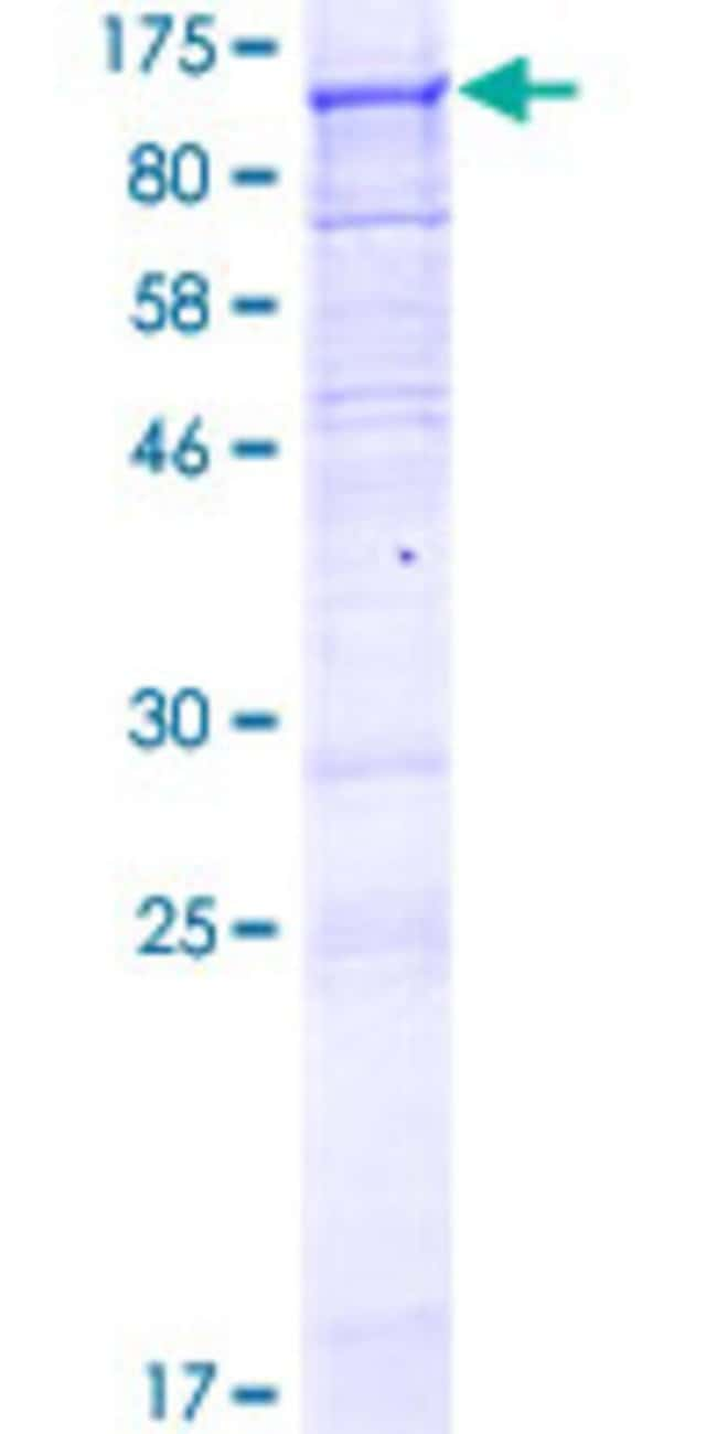 AbnovaHuman C1orf2 Full-length ORF (NP_006580.2, 1 a.a. - 668 a.a.) Recombinant