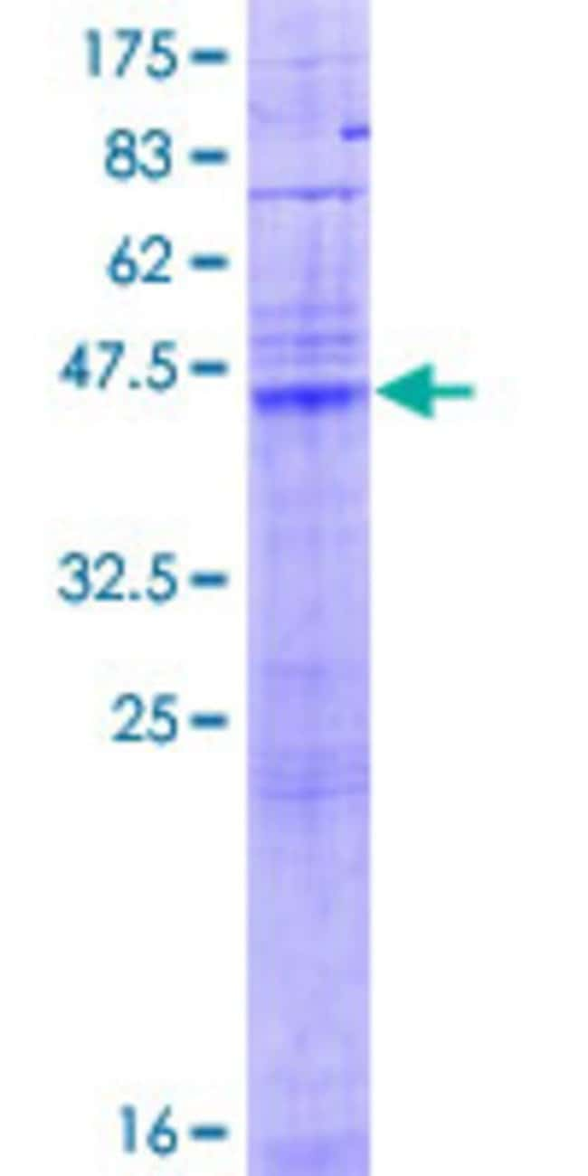 Abnova™ Human LASS1 Full-length ORF (AAH84582.1, 1 a.a. - 239 a.a.) Recombinant Protein with GST-tag at N-terminal 10μg Abnova™ Human LASS1 Full-length ORF (AAH84582.1, 1 a.a. - 239 a.a.) Recombinant Protein with GST-tag at N-terminal