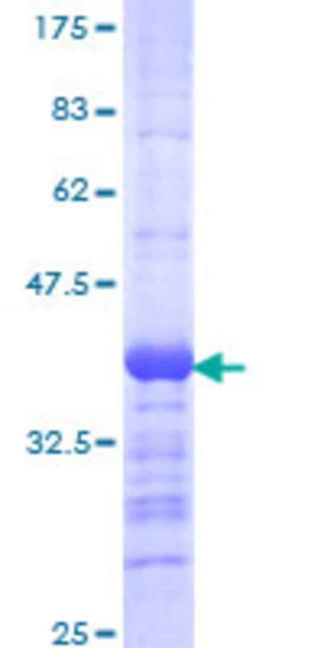AbnovaHuman TBR1 Partial ORF (NP_006584, 1 a.a. - 108 a.a.) Recombinant