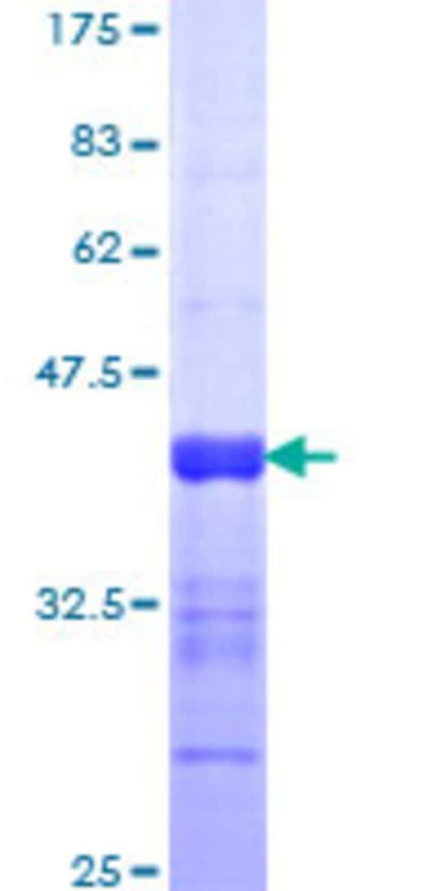 Abnova™Human NFAT5 Partial ORF (NP_006590, 1422 a.a. - 1531 a.a.) Recombinant Protein with GST-tag at N-terminal 25μg Abnova™Human NFAT5 Partial ORF (NP_006590, 1422 a.a. - 1531 a.a.) Recombinant Protein with GST-tag at N-terminal