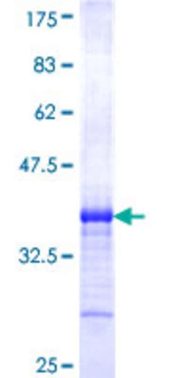 AbnovaHuman TCFL5 Partial ORF (NP_006593, 418 a.a. - 500 a.a.) Recombinant