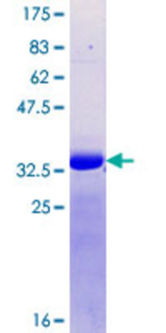 AbnovaHuman RAI1 Partial ORF (NP_109590.3, 1 a.a. - 101 a.a.) Recombinant