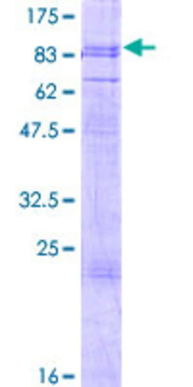 Abnova™Human PHTF1 Full-length ORF (AAH02447.1, 1 a.a. - 637 a.a.) Recombinant Protein with GST-tag at N-terminal 25μg Abnova™Human PHTF1 Full-length ORF (AAH02447.1, 1 a.a. - 637 a.a.) Recombinant Protein with GST-tag at N-terminal