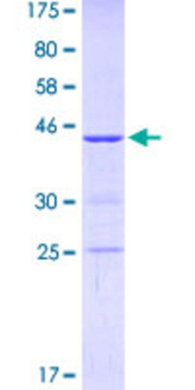 AbnovaHuman KIF1C Partial ORF (NP_006603, 1004 a.a. - 1103 a.a.) Recombinant