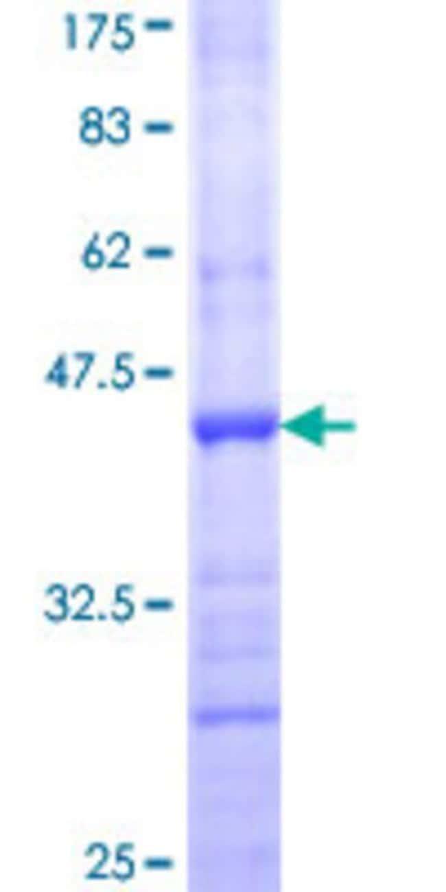 AbnovaHuman CHL1 Partial ORF (NP_006605, 26 a.a. - 135 a.a.) Recombinant