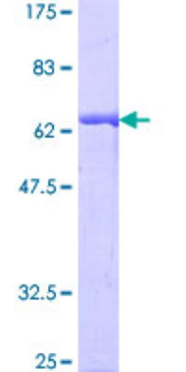 AbnovaHuman GIPC1 Full-length ORF (NP_005707.1, 1 a.a. - 333 a.a.) Recombinant