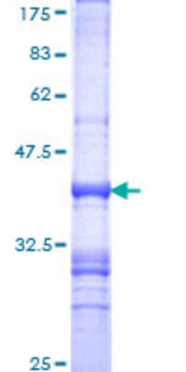 AbnovaHuman GIPC1 Partial ORF (NP_005707, 61 a.a. - 158 a.a.) Recombinant