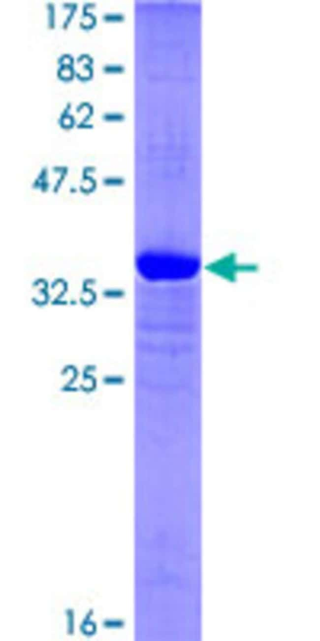 Abnova™Human KDM5B Partial ORF (NP_006609, 231 a.a. - 319 a.a.) Recombinant Protein with GST-tag at N-terminal 25μg Abnova™Human KDM5B Partial ORF (NP_006609, 231 a.a. - 319 a.a.) Recombinant Protein with GST-tag at N-terminal