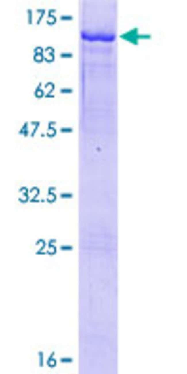 Abnova™Human HBS1L Full-length ORF (NP_006611.1, 1 a.a. - 684 a.a.) Recombinant Protein with GST-tag at N-terminal 10μg Abnova™Human HBS1L Full-length ORF (NP_006611.1, 1 a.a. - 684 a.a.) Recombinant Protein with GST-tag at N-terminal